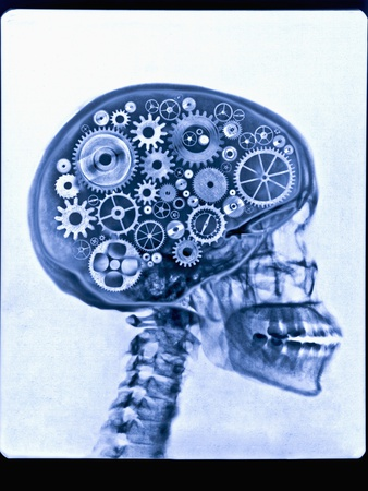 thom-lang-x-ray-of-skull-with-gears